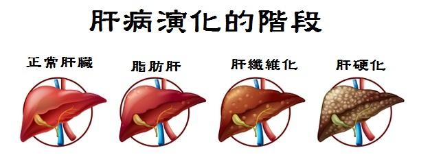 脂肪肝是肝病演化過程中的一環